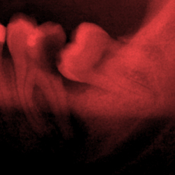 Group logo of Oral Surgery